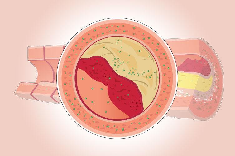 Arterial Inflammation
